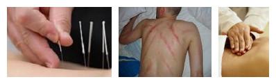 Acupuncture, Gua Sha and Tui Na
